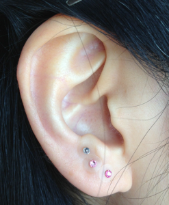 耳ツボ施術1